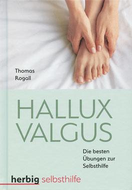 Hallux Valgus_small