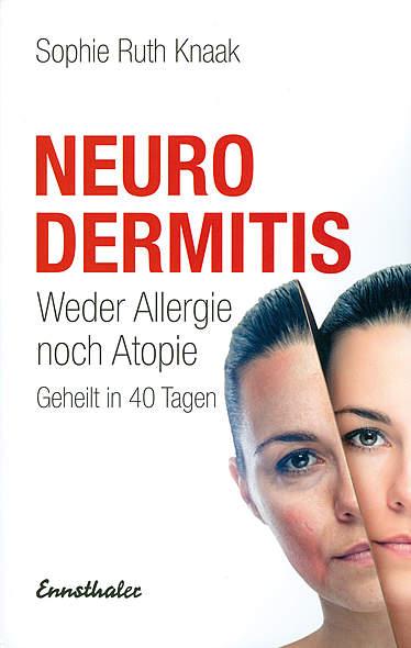Neurodermitis - Weder Allergie noch Atopie