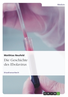 Die Geschichte des Ebolavirus